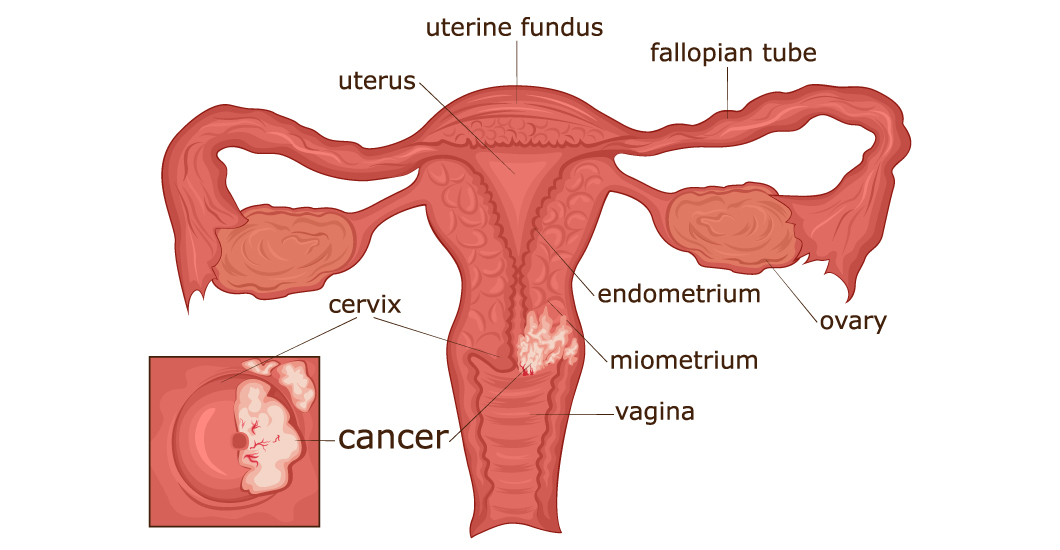What can I do to reduce my risk of cervical cancer?